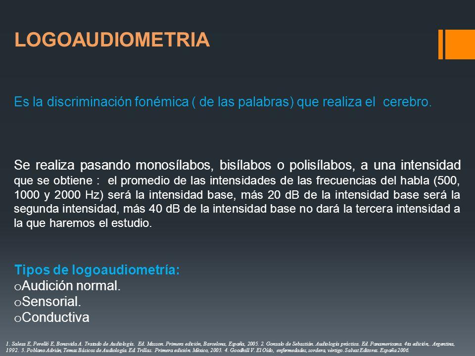 LOGOAUDIOMETRIA Es la discriminación fonémica ( de las palabras) que realiza el cerebro.