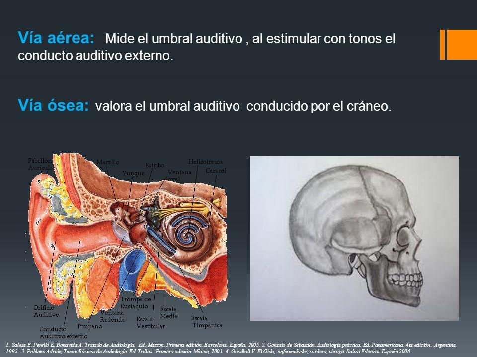 Vía ósea: valora el umbral auditivo conducido por el cráneo.