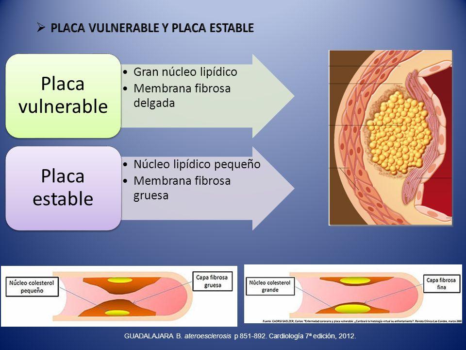 Placa vulnerable Placa estable PLACA VULNERABLE Y PLACA ESTABLE