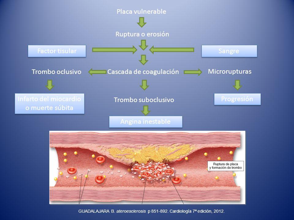 Cascada de coagulación Microrupturas