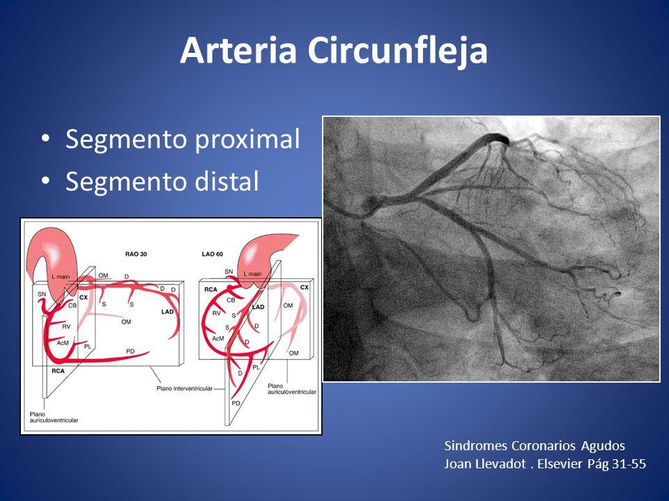 Arteria Circunfleja Segmento proximal Segmento distal