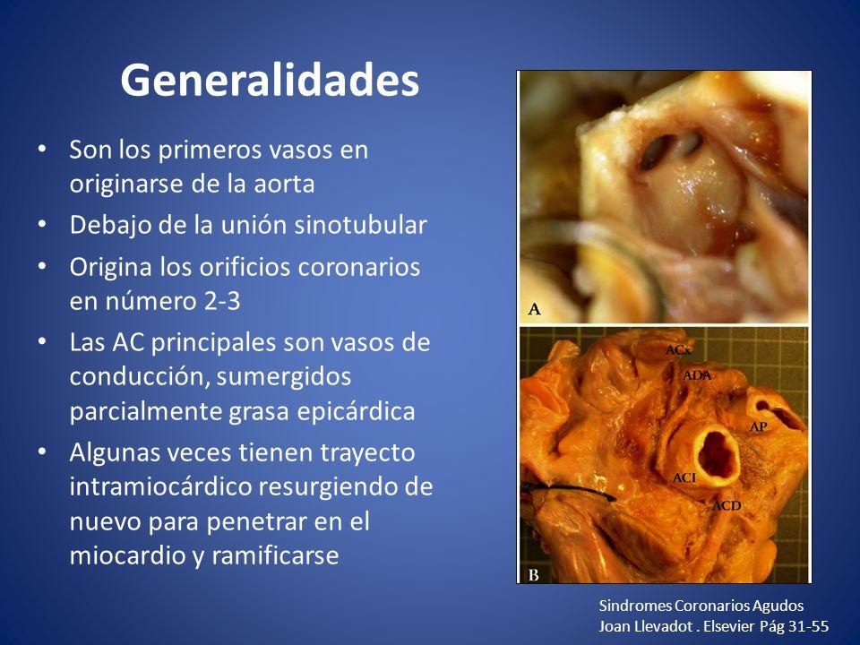 Generalidades Son los primeros vasos en originarse de la aorta