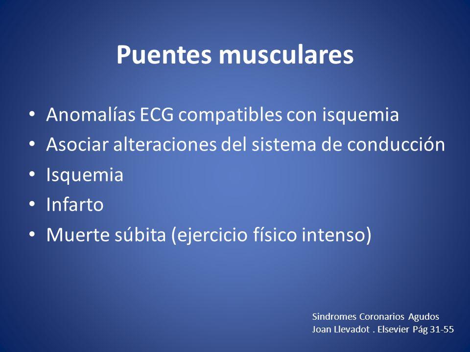 Puentes musculares Anomalías ECG compatibles con isquemia