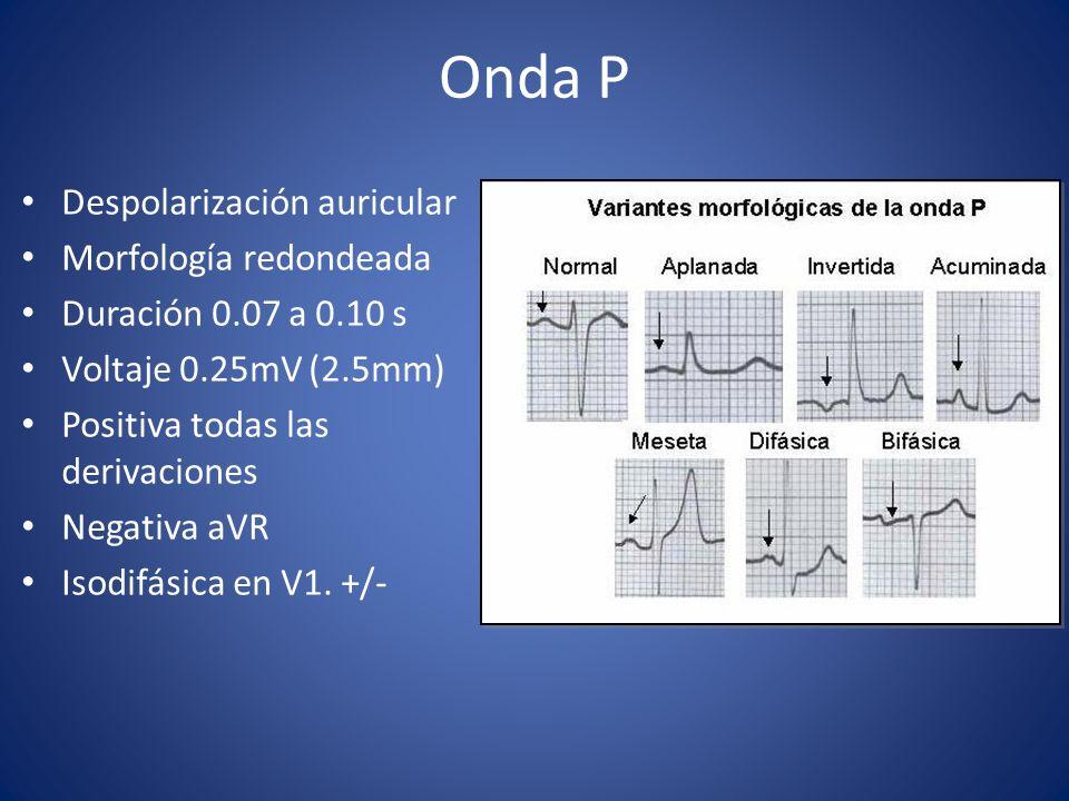 Onda P Despolarización auricular Morfología redondeada