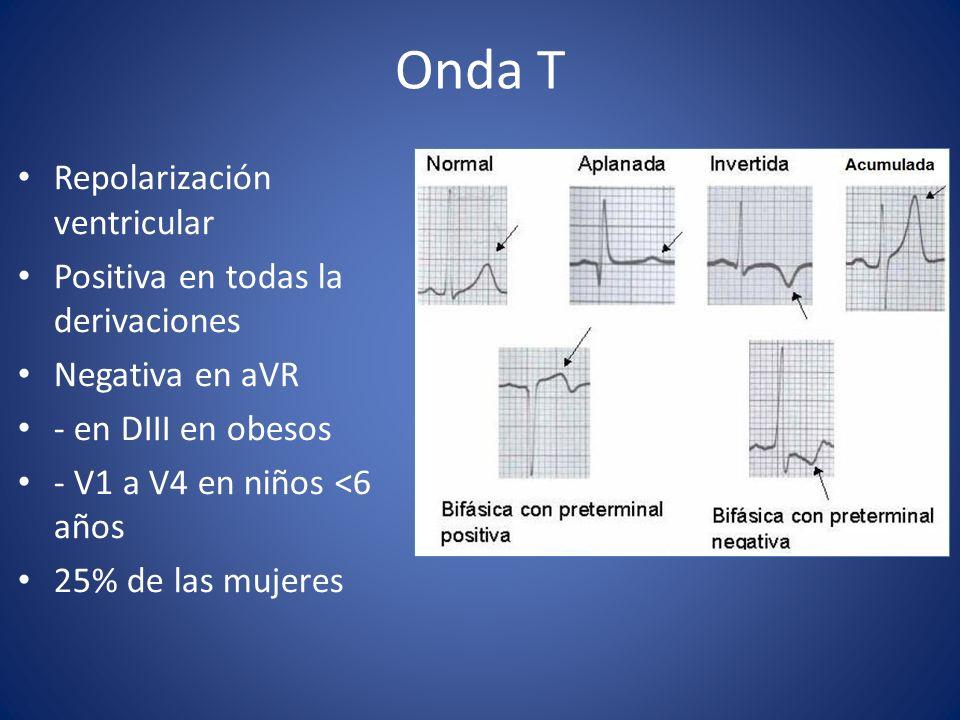 Onda T Repolarización ventricular Positiva en todas la derivaciones