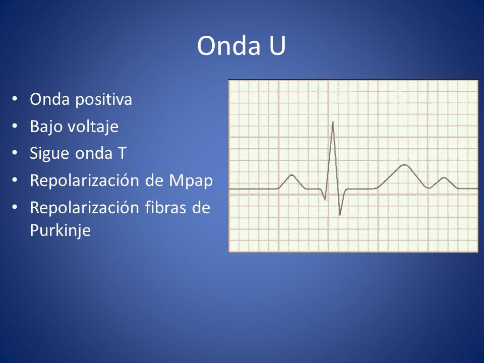 Onda U Onda positiva Bajo voltaje Sigue onda T Repolarización de Mpap