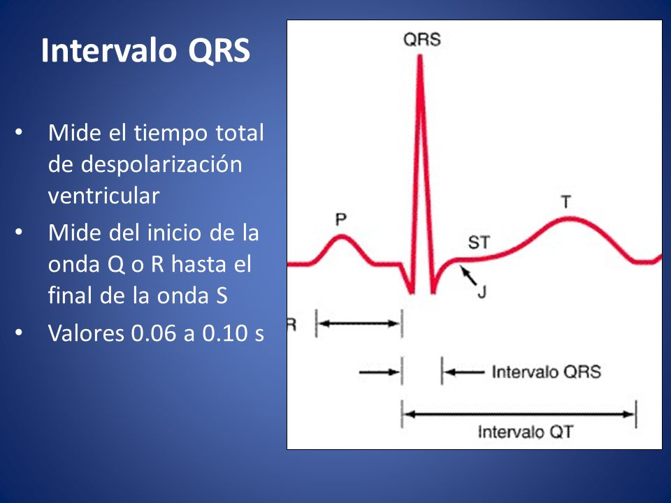 Intervalo QRS Mide el tiempo total de despolarización ventricular