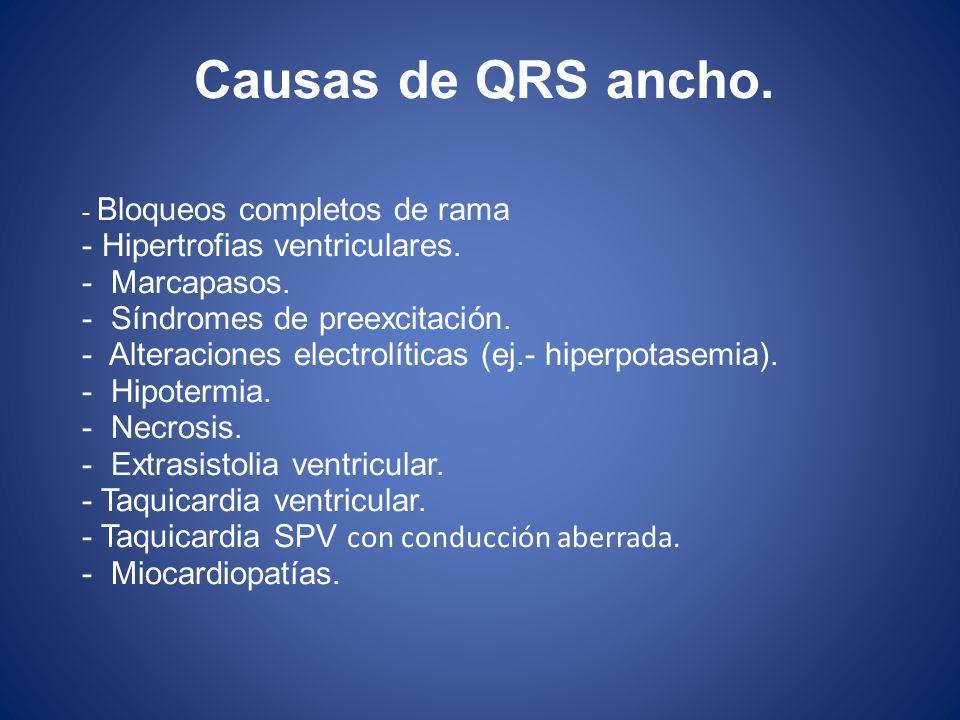 Causas de QRS ancho. Hipertrofias ventriculares. Marcapasos.