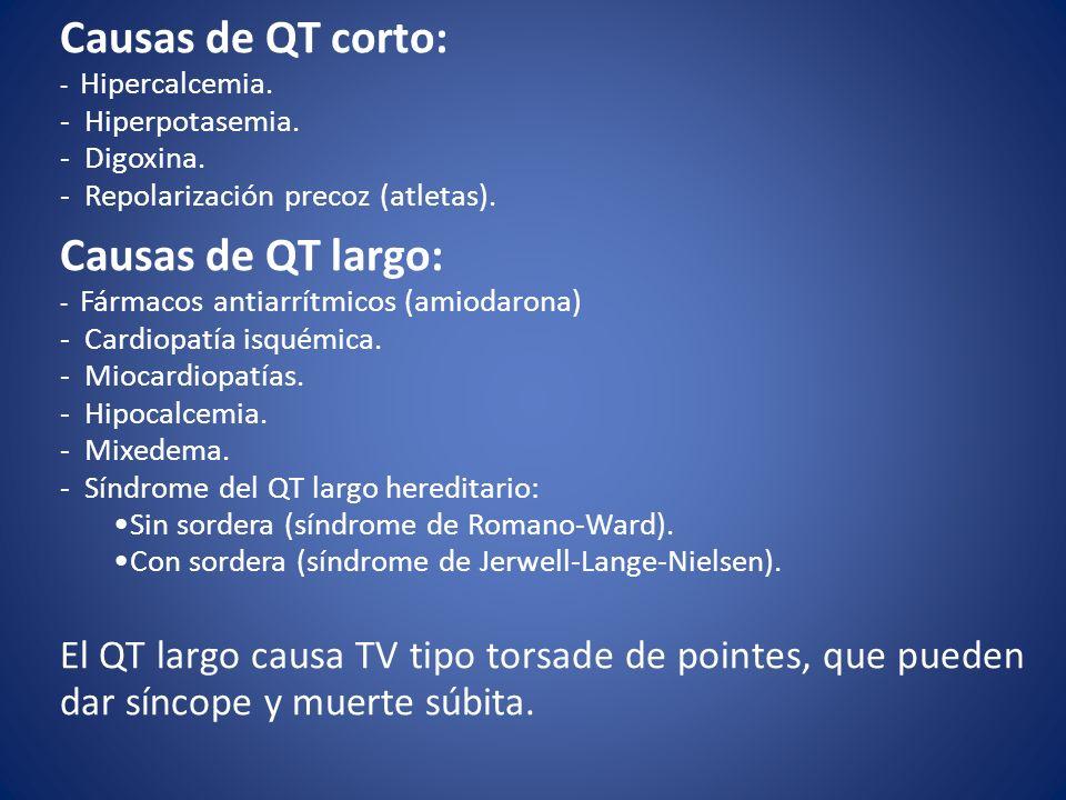 Causas de QT corto: Causas de QT largo: