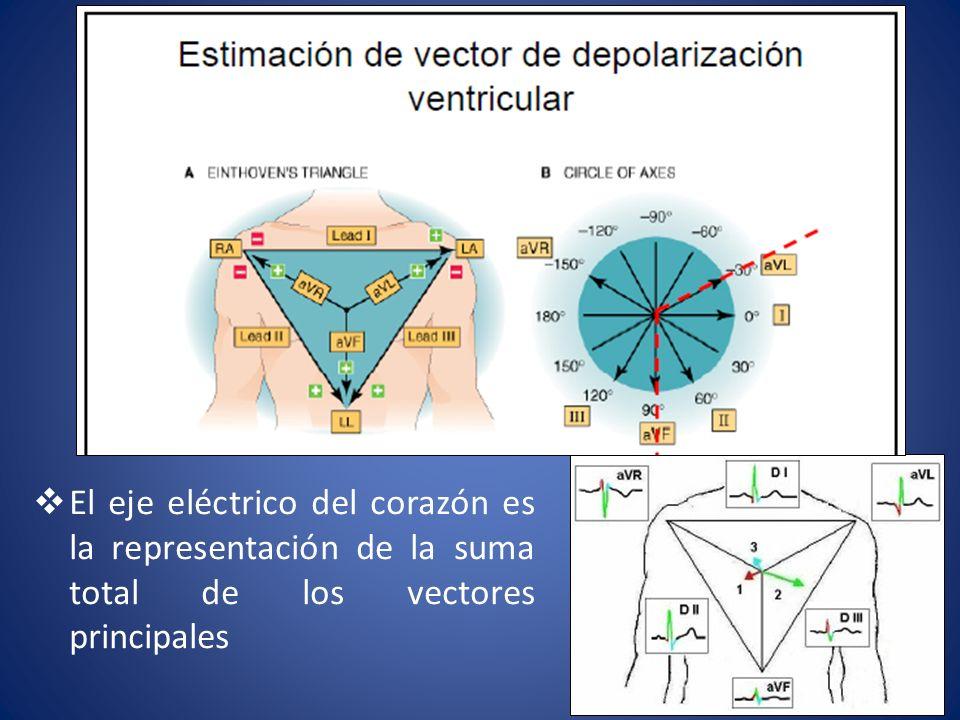 El eje eléctrico del corazón es la representación de la suma total de los vectores principales