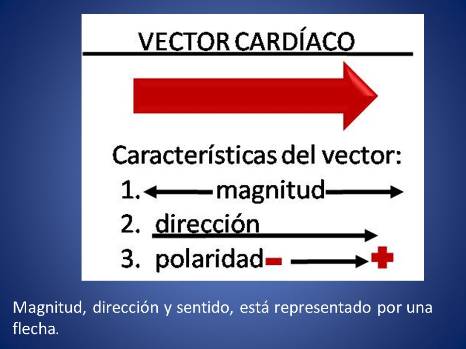 Magnitud, dirección y sentido, está representado por una flecha.