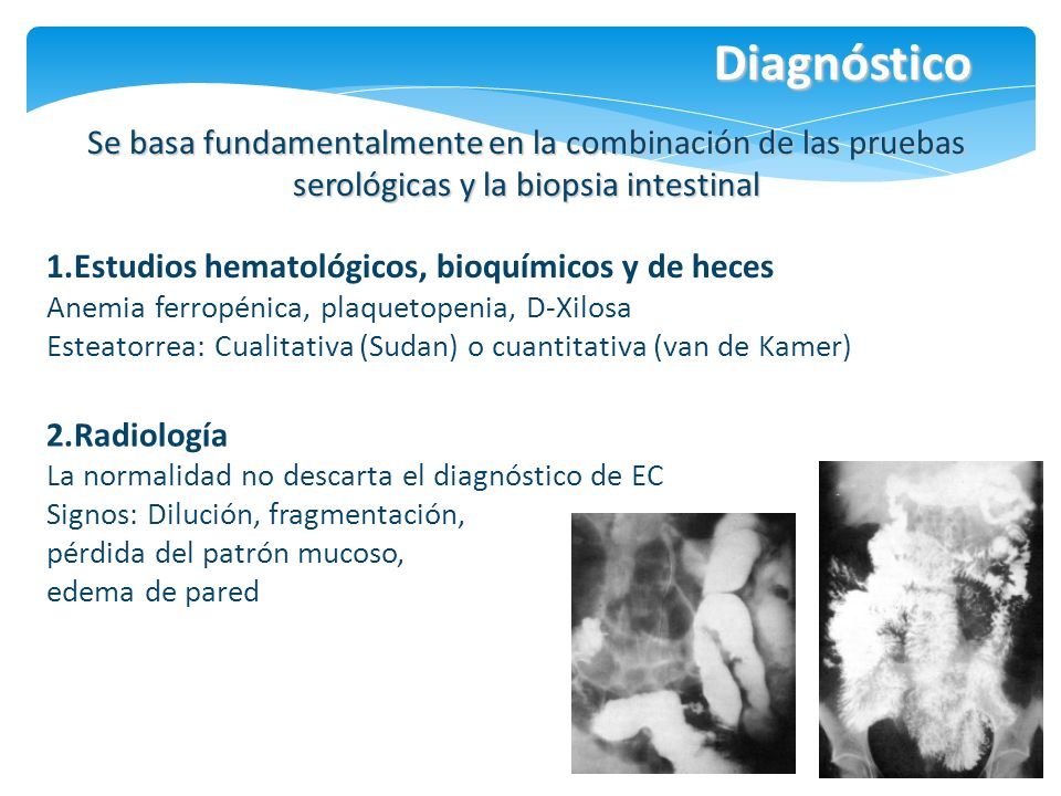 Diagnóstico Se basa fundamentalmente en la combinación de las pruebas serológicas y la biopsia intestinal.