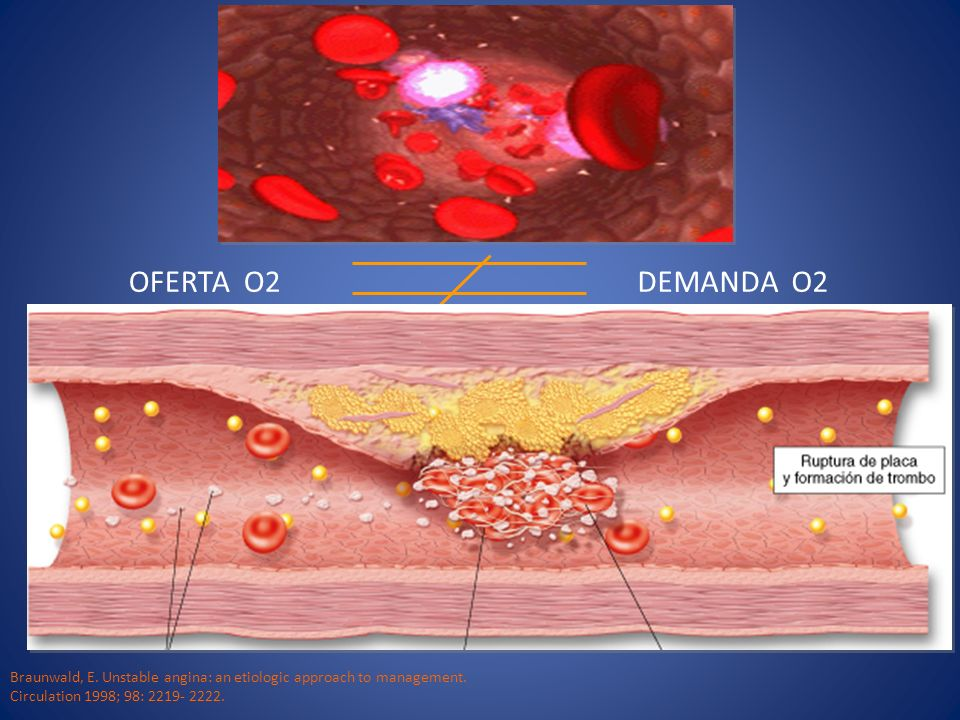 OFERTA O2 DEMANDA O2. Braunwald, E. Unstable angina: an etiologic approach to management.