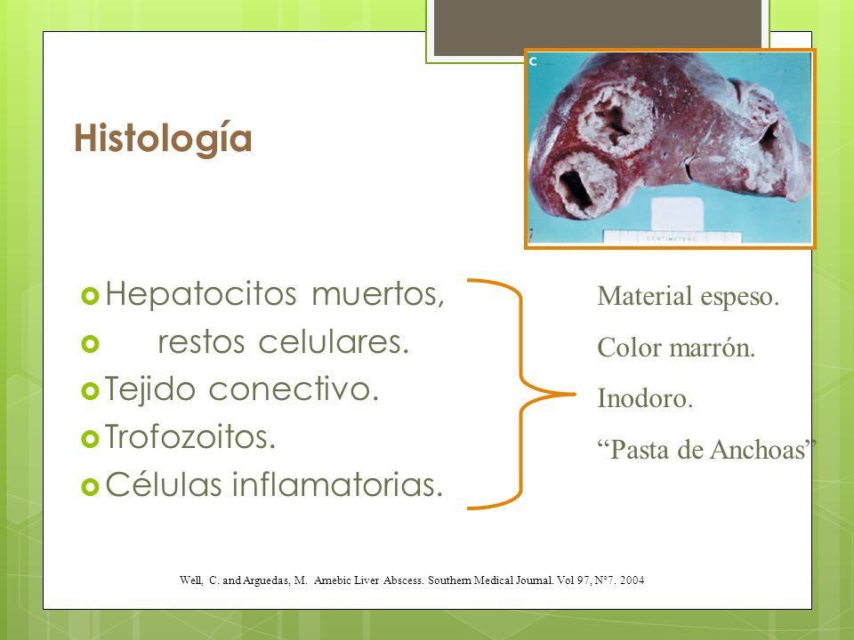 Histología Hepatocitos muertos, restos celulares. Tejido conectivo.