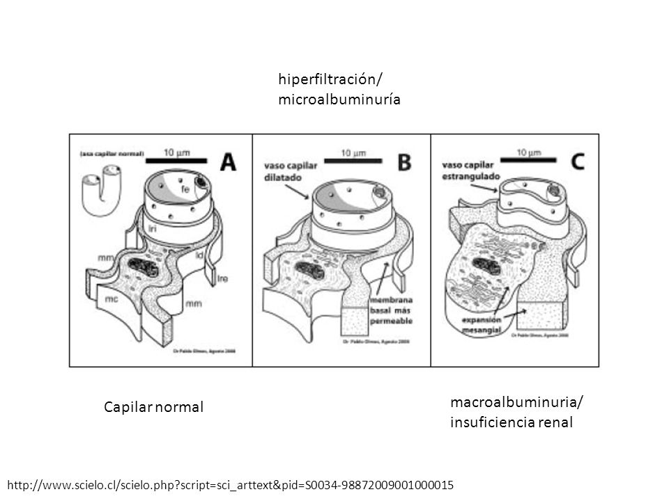 hiperfiltración/ microalbuminuría macroalbuminuria/ Capilar normal