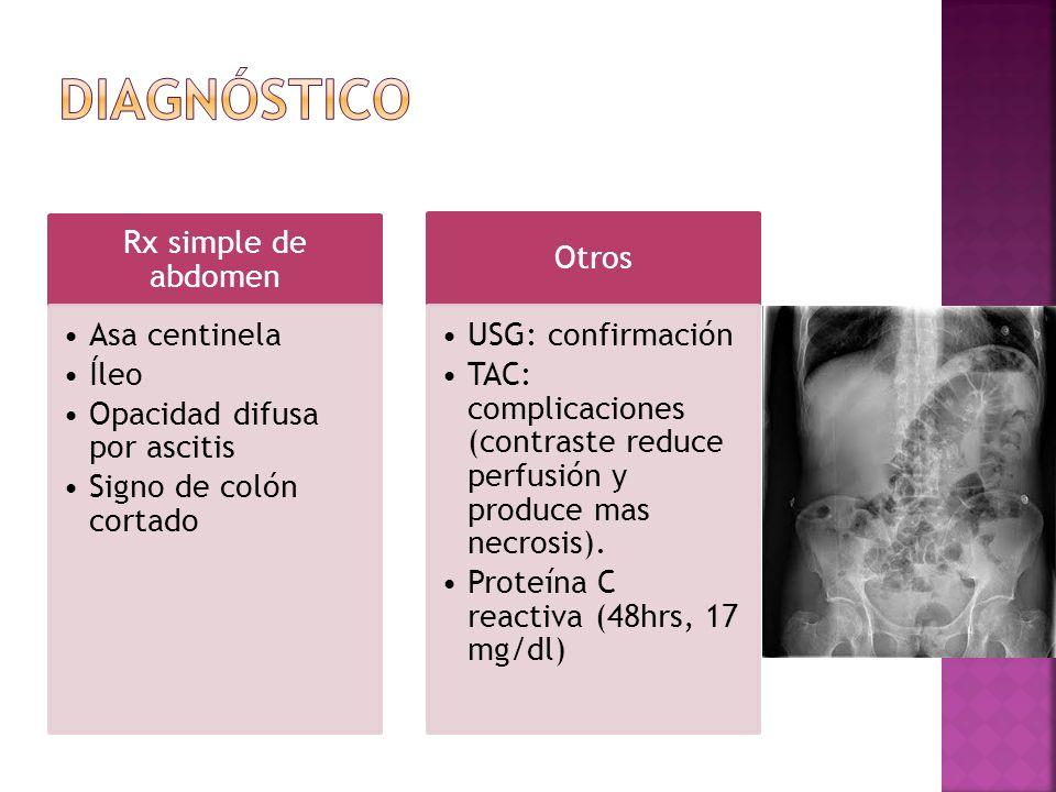 Diagnóstico Rx simple de abdomen Asa centinela Íleo