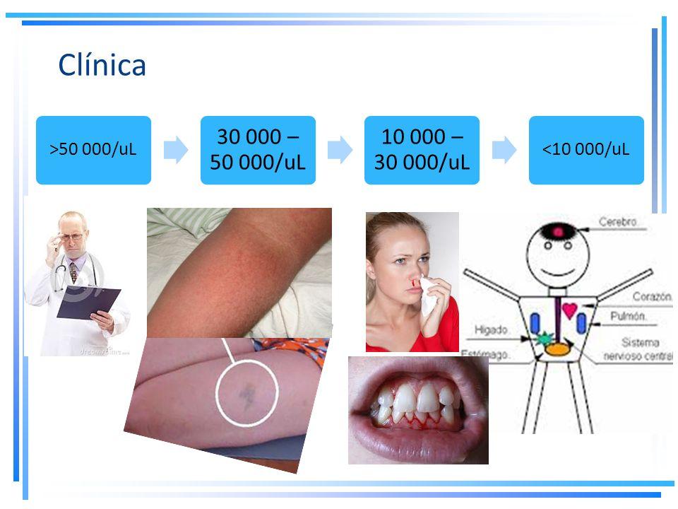 Clínica 30 000 – 50 000/uL 10 000 – 30 000/uL >50 000/uL