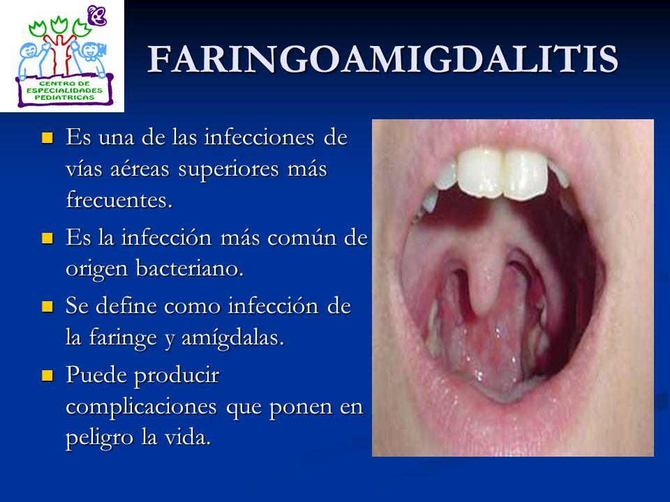 FARINGOAMIGDALITIS Es una de las infecciones de vías aéreas superiores más frecuentes. Es la infección más común de origen bacteriano.