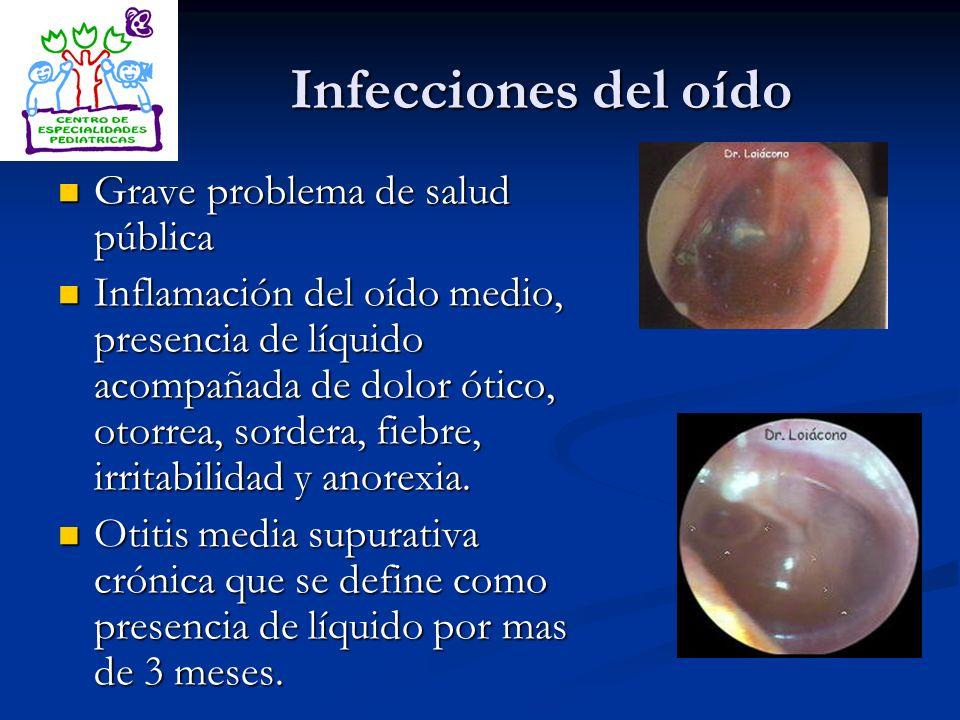 Infecciones del oído Grave problema de salud pública