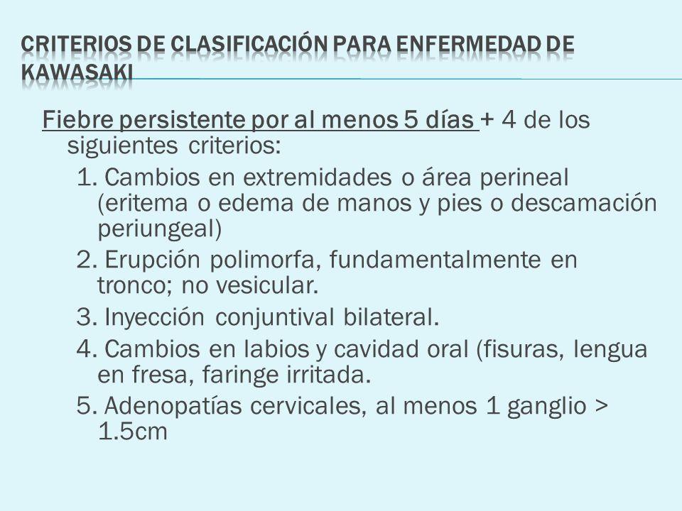 Criterios de clasificación para enfermedad de Kawasaki