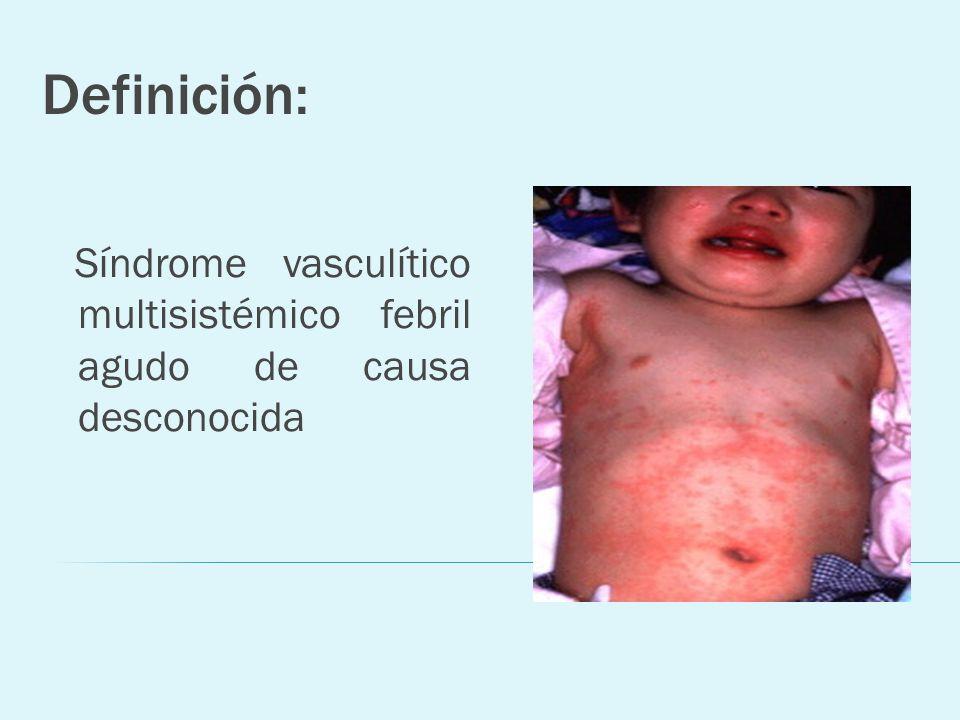 Definición: Síndrome vasculítico multisistémico febril agudo de causa desconocida