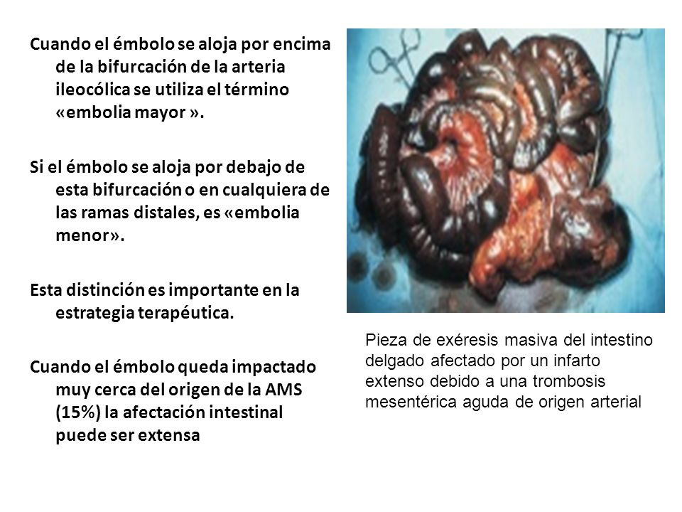 Cuando el émbolo se aloja por encima de la bifurcación de la arteria ileocólica se utiliza el término «embolia mayor ». Si el émbolo se aloja por debajo de esta bifurcación o en cualquiera de las ramas distales, es «embolia menor». Esta distinción es importante en la estrategia terapéutica. Cuando el émbolo queda impactado muy cerca del origen de la AMS (15%) la afectación intestinal puede ser extensa