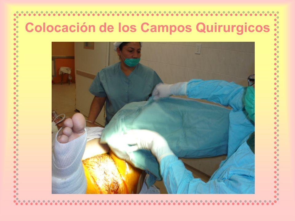 Colocación de los Campos Quirurgicos