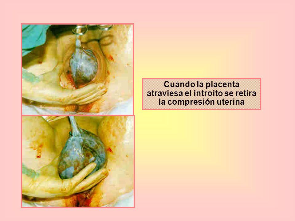 Cuando la placenta atraviesa el introito se retira la compresión uterina
