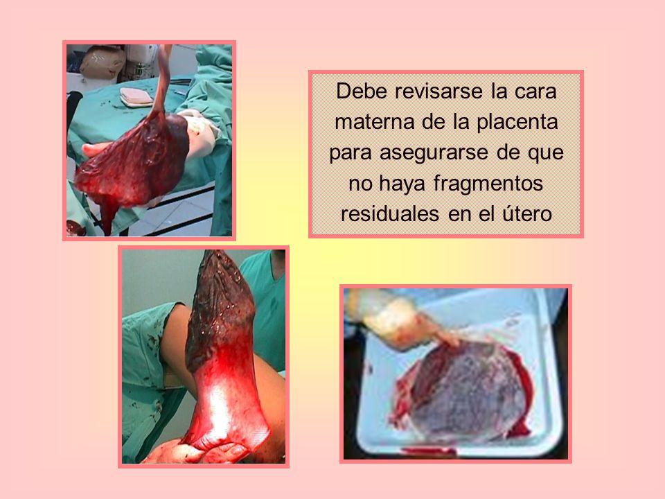 Debe revisarse la cara materna de la placenta para asegurarse de que no haya fragmentos residuales en el útero