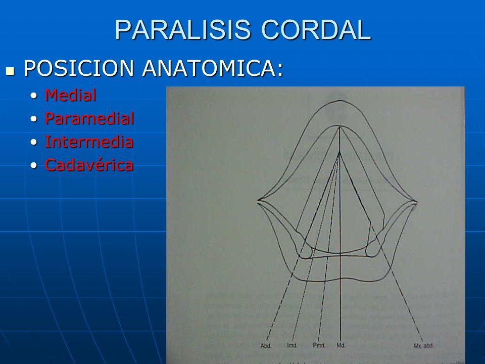 PARALISIS CORDAL POSICION ANATOMICA: Medial Paramedial Intermedia