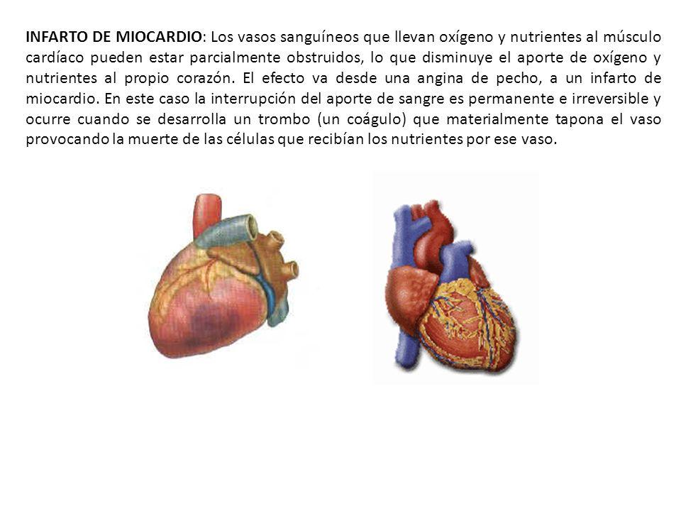 INFARTO DE MIOCARDIO: Los vasos sanguíneos que llevan oxígeno y nutrientes al músculo cardíaco pueden estar parcialmente obstruidos, lo que disminuye el aporte de oxígeno y nutrientes al propio corazón.