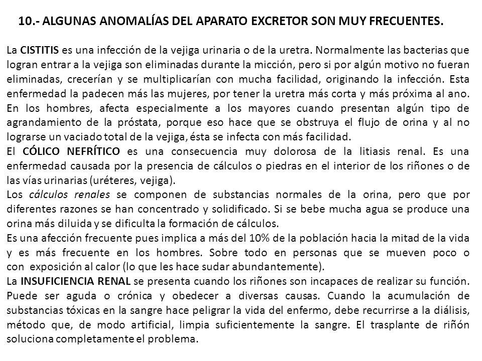 10.- ALGUNAS ANOMALÍAS DEL APARATO EXCRETOR SON MUY FRECUENTES.