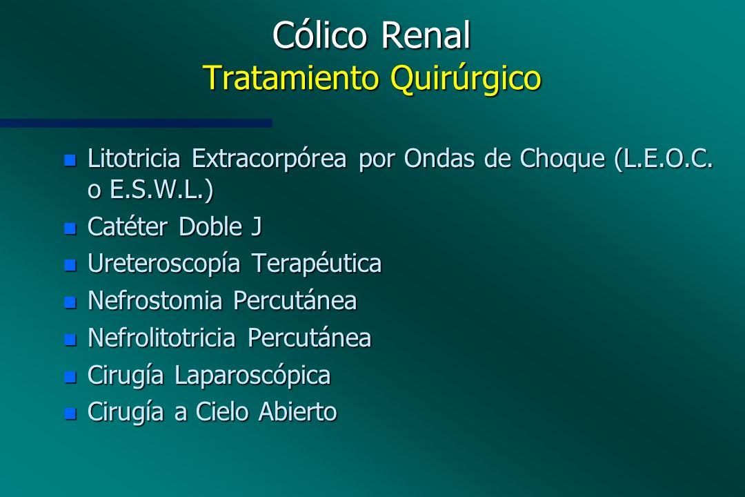 Cólico Renal Tratamiento Quirúrgico