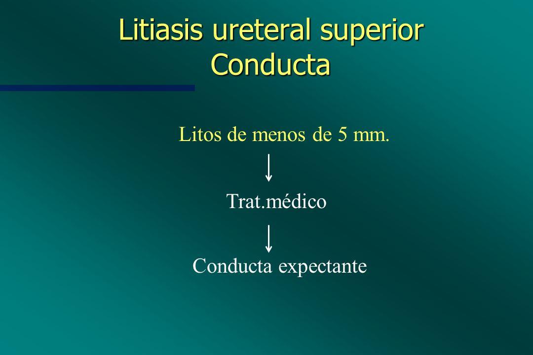 Litiasis ureteral superior Conducta