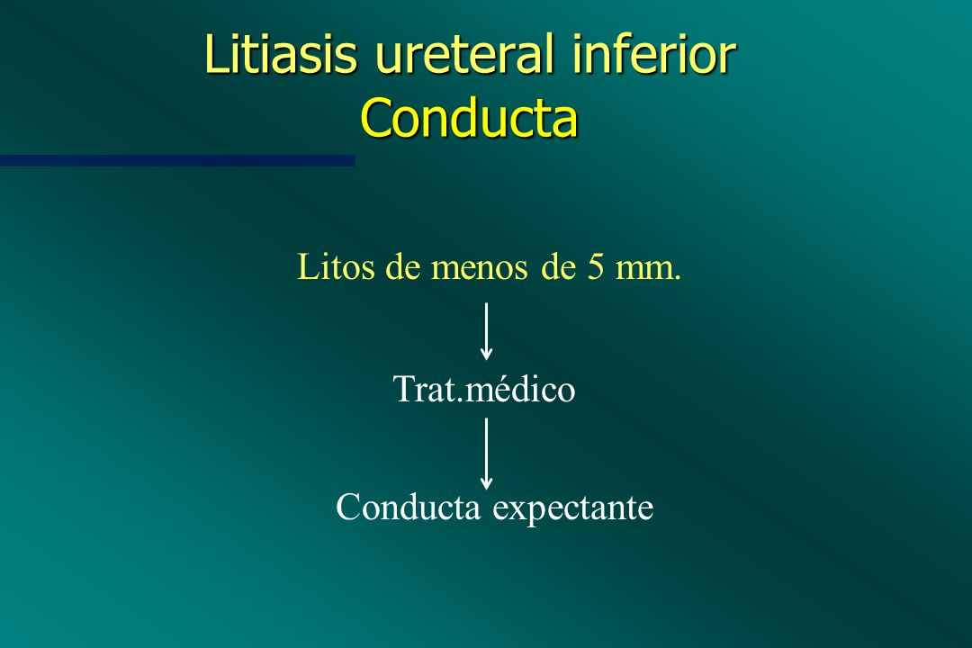 Litiasis ureteral inferior Conducta