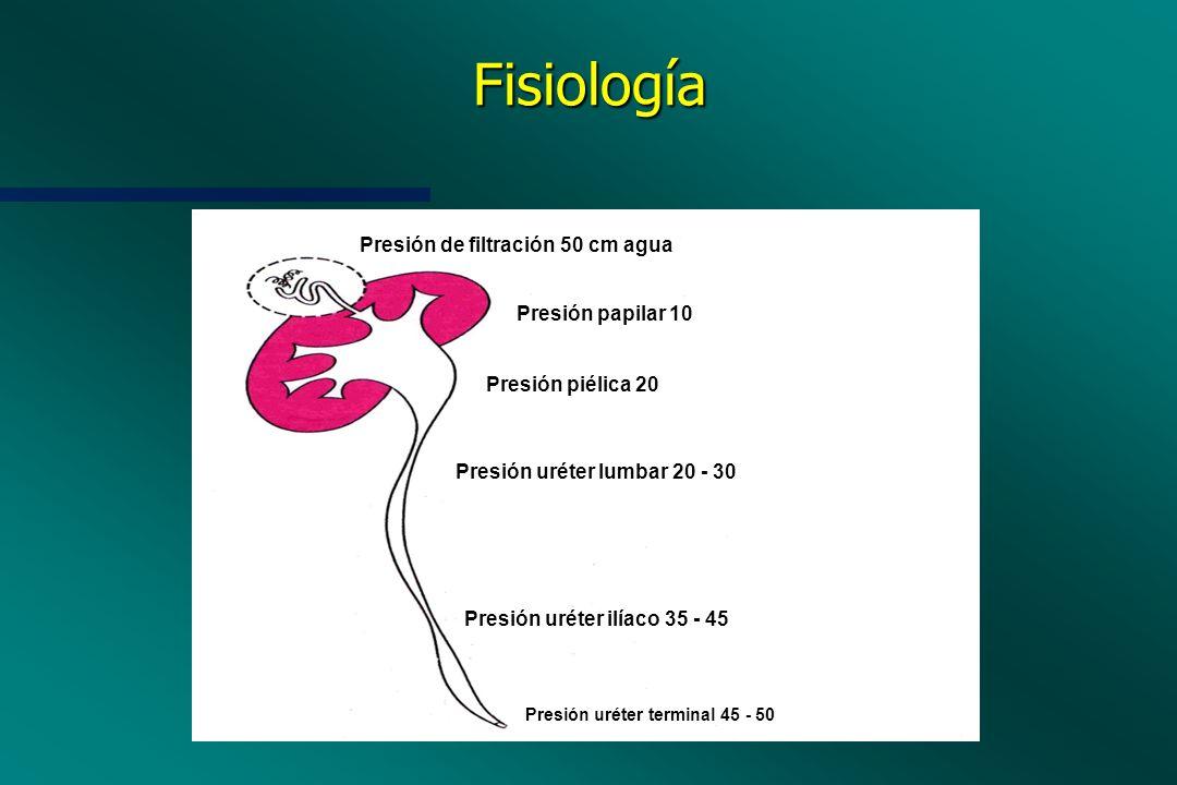 Fisiología Presión de filtración 50 cm agua Presión papilar 10