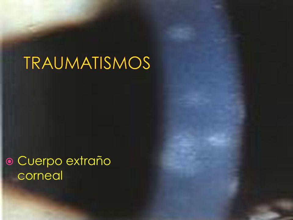 TRAUMATISMOS Cuerpo extraño corneal