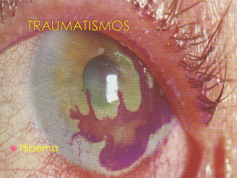 TRAUMATISMOS Hipema