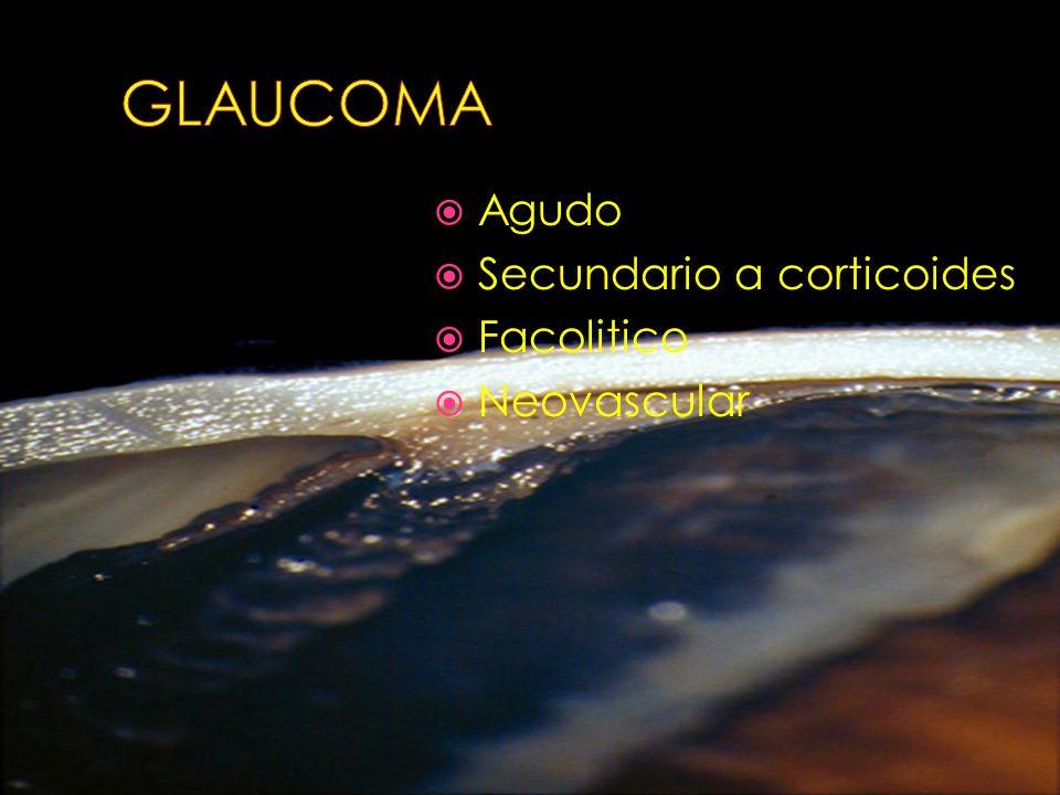 GLAUCOMA Agudo Secundario a corticoides Facolitico Neovascular