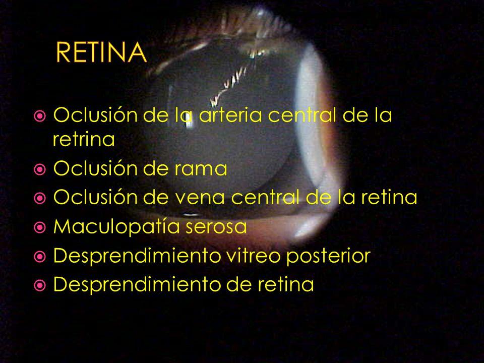 RETINA Oclusión de la arteria central de la retrina Oclusión de rama