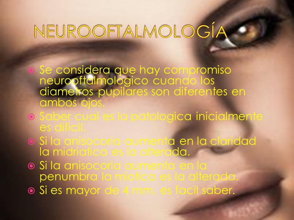 NEUROOFTALMOLOGÍA Se considera que hay compromiso neurooftalmologico cuando los diametros pupilares son diferentes en ambos ojos.