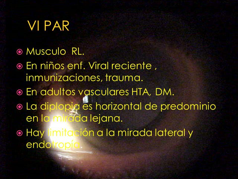 VI PAR Musculo RL. En niños enf. Viral reciente , inmunizaciones, trauma. En adultos vasculares HTA, DM.