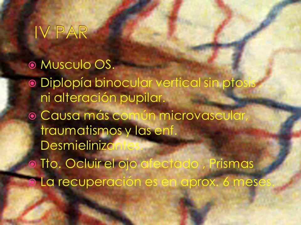 IV PAR Musculo OS. Diplopía binocular vertical sin ptosis , ni alteración pupilar.
