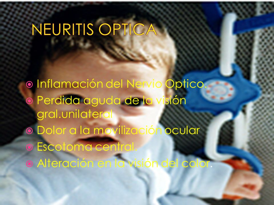 NEURITIS OPTICA Inflamación del Nervio Optico.