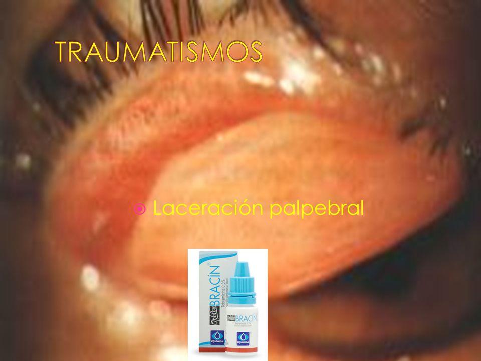 TRAUMATISMOS Laceración palpebral
