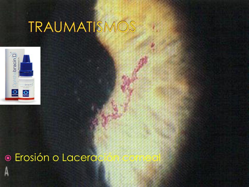 TRAUMATISMOS Erosión o Laceración corneal