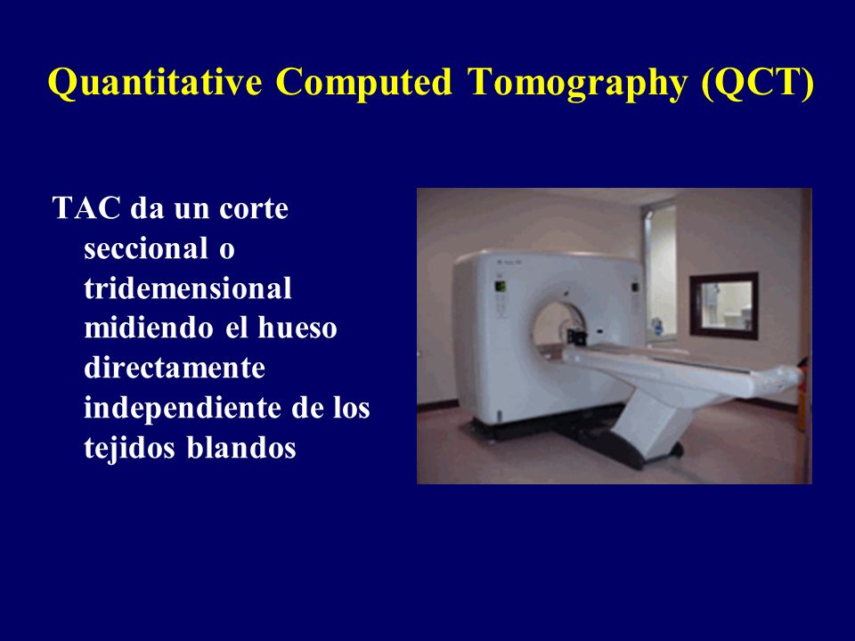 Quantitative Computed Tomography (QCT)