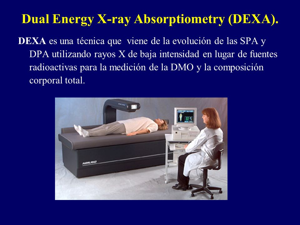 Dual Energy X-ray Absorptiometry (DEXA).