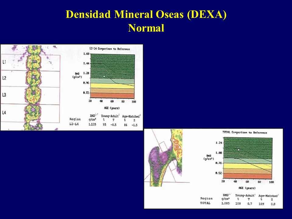 Densidad Mineral Oseas (DEXA) Normal