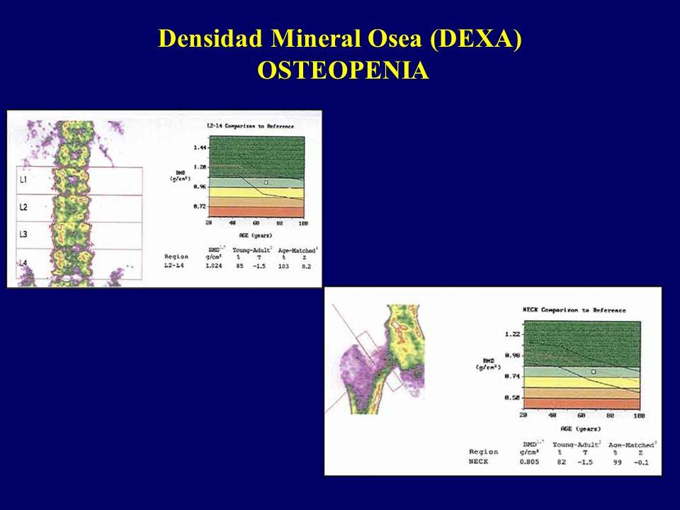 Densidad Mineral Osea (DEXA) OSTEOPENIA
